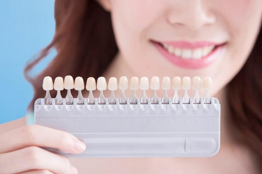 De beste tannbleking hjemme produkter i 2020